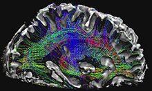 dti-brain