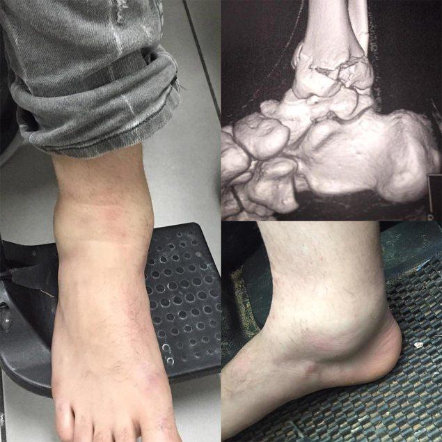 jack-miller-broken-foot
