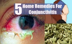 5 Best Home Remedies For Conjunctivitis In Adults