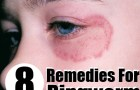 8 Effective Herbal Remedies For Ringworm