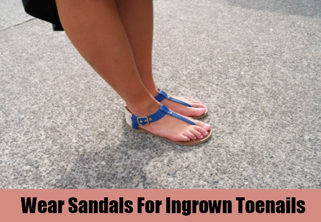 Wear Sandals For Ingrown Toenails