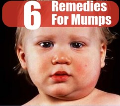 6 Effective Home Remedies For Mumps