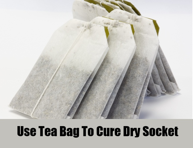 Use Tea Bag To Cure Dry Socket
