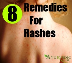 8 Simple Home Remedies For Rashes