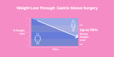 Gastric Sleeve Surgery - 14 Ways It Will Affect You - Bariatric Surgery Source