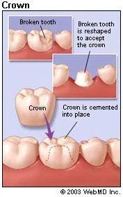 dental crown steps