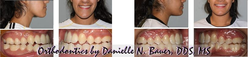 orthognathic surgery before and after
