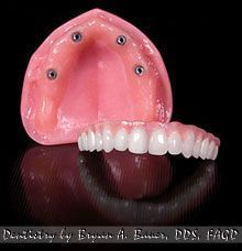 implant retained denture, dental implants with Locator attachments on upper denture