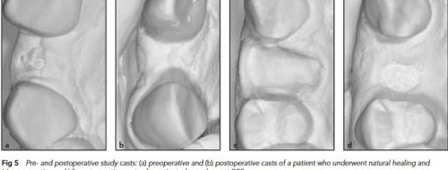 buccal bone preservation