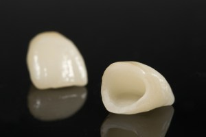 dental crowns bridges fremont dentist