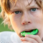 mouth guards sports guards fremont dentists