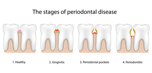 deep cleaning gum disease