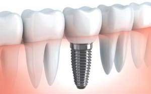 Dental-implants-fremont-dentist