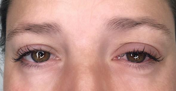nevarnosti-podaljsevanje-trepalnic-alergija-alergicna-reakcija