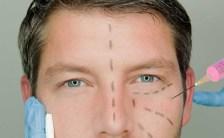 chirurgia cosmetica