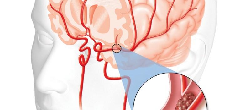 Kanker Otak: Dua Asam Amino Esensial Memberi Perawatan Yang Lebih Baik Pada Penderita Kanker Otak