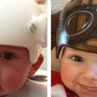Artist transforms corrective medical helmets for babies into cool works of art