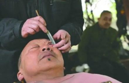 A estranha raspagem dos olhos na China