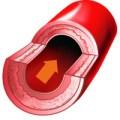 Sezione di un vaso sanguigno (credit: hypertension.ca)