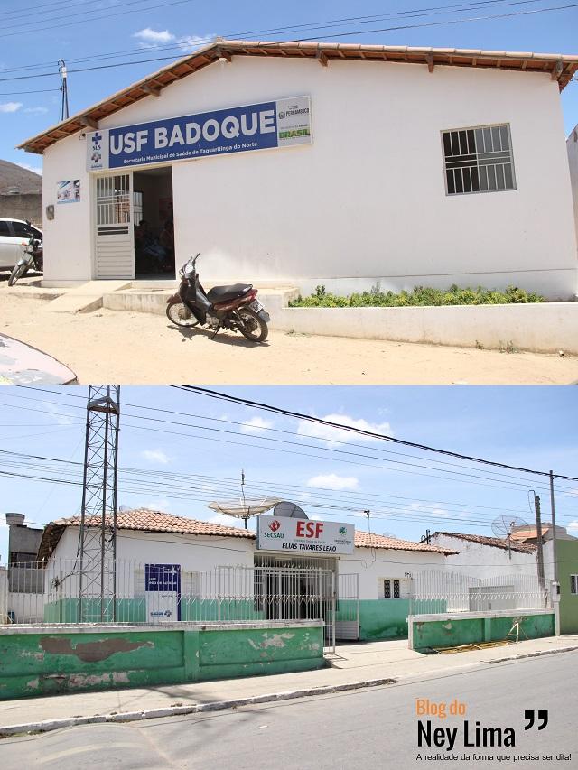 Surto em Pão de Açucar começou a ser registrado há 15 dias segundo responsáveis por PSFs