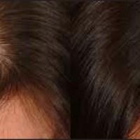 Minoxidil na queda de cabelo feminina