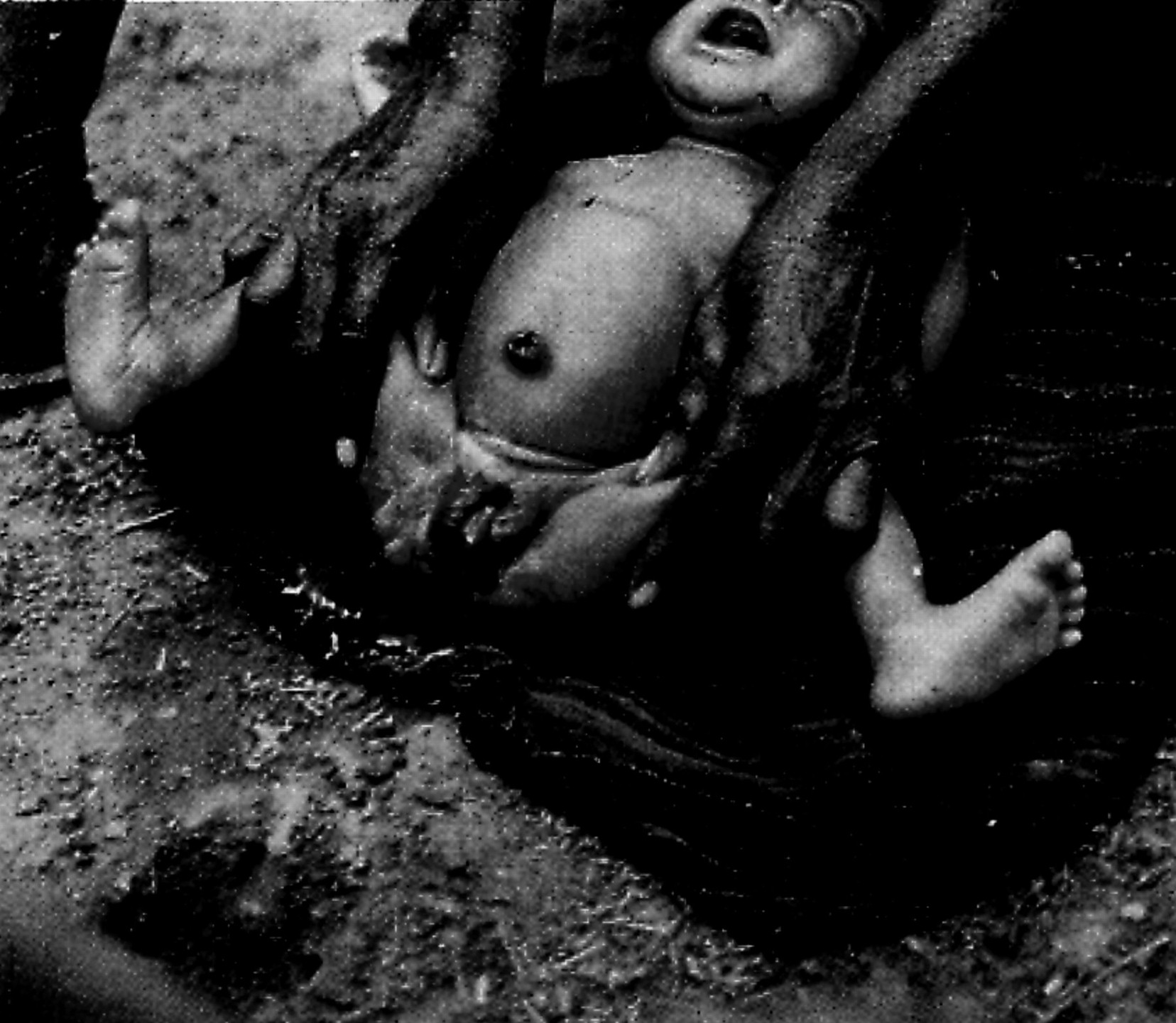 female circumcision procedure