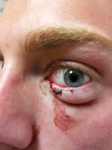 Here's a fellow who was bitten by his own dog after going in for a kiss, lacerating his eyelid.
