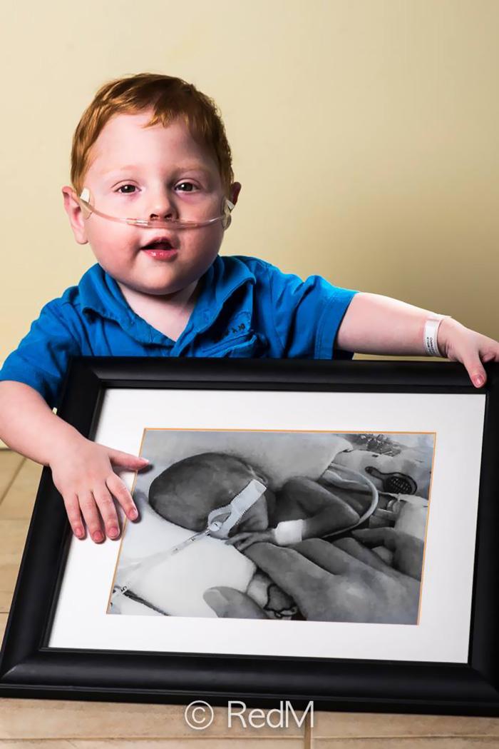 retratos-bebes-prematuros-les-premas-red-methot (11)