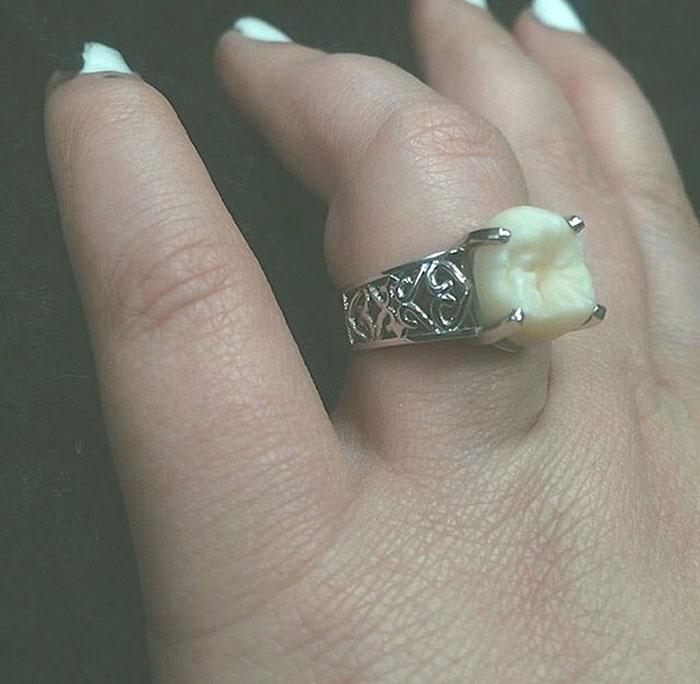 anillo-compromiso-muela-juicio-carlee-leifkes-lucas-unger (3)