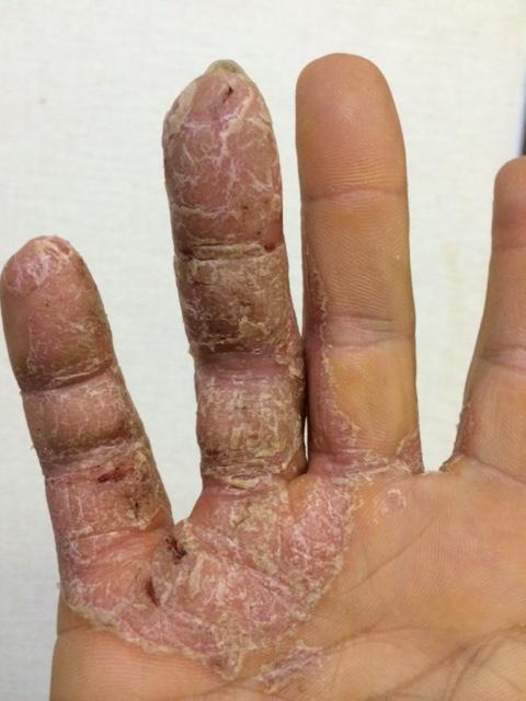 右手皮膚病