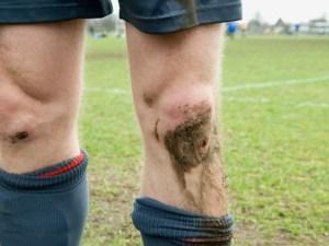 muddy-knee