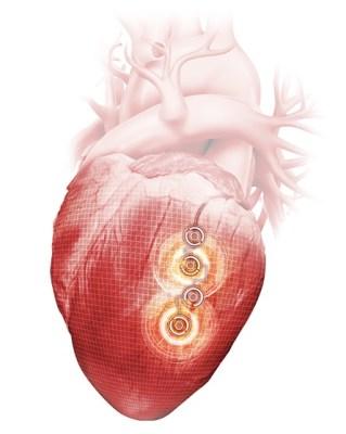 scompenso cardiaco Il Pacemaker Quadra Allure Mp™ CRT-P
