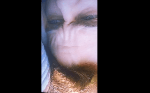 joaquin-phoenix-forehead