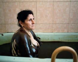 "Albina Visilova is a patient at the Naftalan Sanitorium, Azerbaijan. The healing properties of Naftalan, 'the miracle oil' that is found exclusively in the Azeri desert, were noted in Marco Polo's accounts in the late 13th Century: ""Near the Georgian border there is a spring from which gushes a stream of oil, in such abundance that a hundred ships may load there at once. This oil is not good to eat; but it is good for burning and as a salve for men and camels affected with itch or scab."