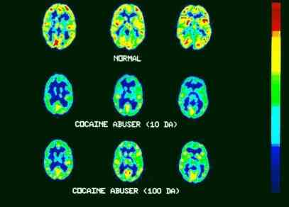 PET Scans:  NORMAL AND COCAINE  ABUSER A normal brain (top) and a cocaine abuser's 10 and 100 days after taking the drug. Normal metabolic activity, indicated by bright red and yellow, is blunted in the drug abuser.