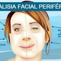 paralisia-facial-periferica-ou-paralisia-de-bell