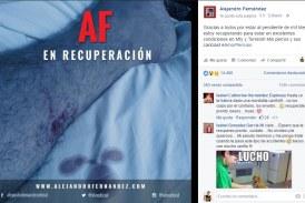 Alejandro Fernández 'El Potrillo' Cancela Concierto Tras Accidentarse