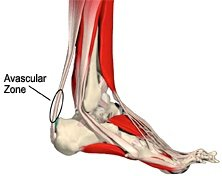 Achilles Tendon Disorders