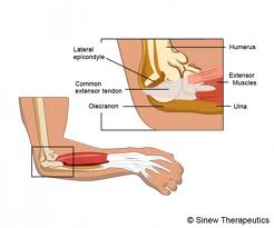 Elbow Hyperextension Injury