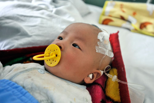A Chinese baby with kidney stones caused by cheap Sanlu baby milk forumla tainted with melamine.