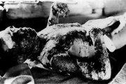 japanese-atomic-bomb-victims-14