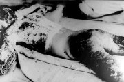 japanese-atomic-bomb-victims-19