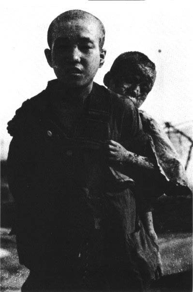 japanese-atomic-bomb-victims-27