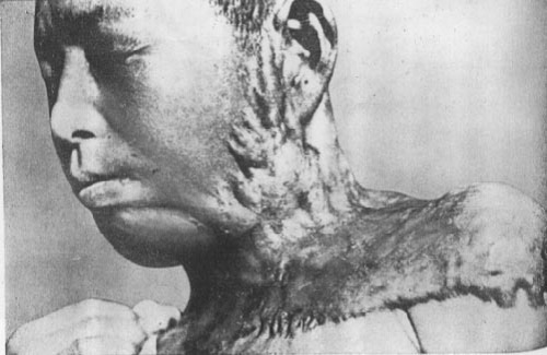 japanese-atomic-bomb-victims-31