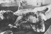 japanese-atomic-bomb-victims-33