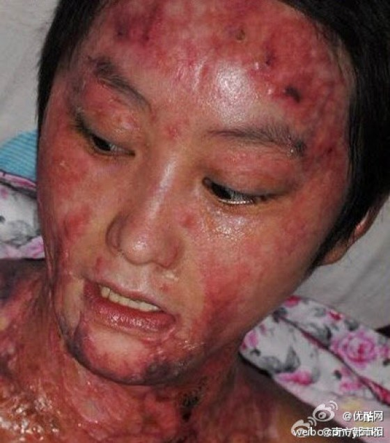Zhou Yan, a teenage girl in Hefei, China who has been burned and disfigured by the son of government officials for rejecting his love.