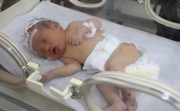 """""""Xiao Mao Tou"""", the Chinese infant baby who was found stuck in a drain/sewage pipe."""
