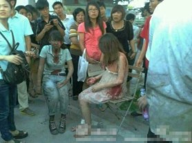 Survivors of the Xiamen public bus fire that killed 47 and injured over 30.