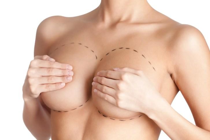 Prothèses PIP en augmentation mammaire