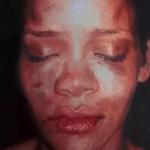 Rihanna after fight